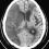 高血圧の薬をやめるとどうなるのか?脳外科医が教えましょう!